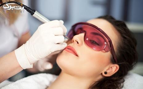 لیزر نواحی بدن در مطب دکتر مهدوی راد