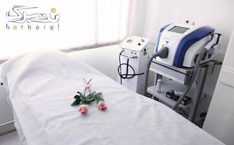 لیزر ناحیه ای در مطب دکتر مهرابی