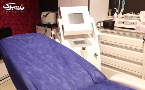 لیزر ناحیه ای بدن در مطب  دکتر صالحی