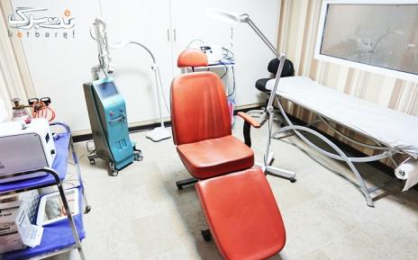 لیزر SHR ناحیه زیر بغل در مطب دکتر سلطانی