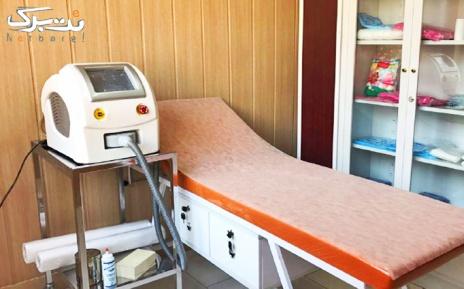 لیزر زیر بغل با دستگاه ایلایت در مطب دکترتاجیک