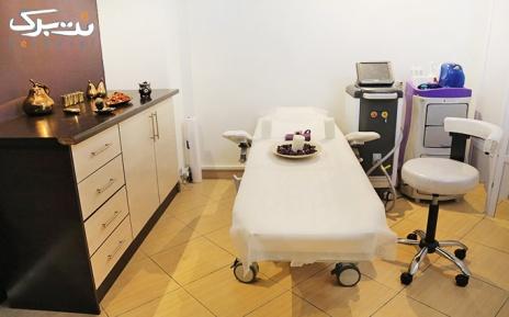 لیزر زیربغل در مطب دکترمیرصدرایی