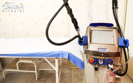 لیزر  ناحیه زیربغل در مطب دکتر غلامی