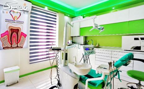 کامپوزیت دندان توسط دکتر فتاح دوست