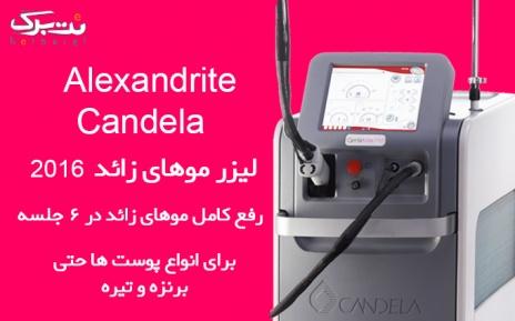 لیزر نواحی الکساندرایت کندلا در مطب دکتر قنبرپور