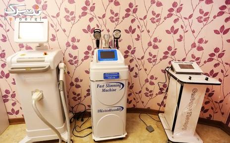 لیزر دایود shr ویژه نواحی بدن در مطب دکتر ضیائیان