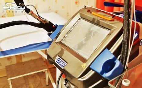 لیزر نواحی بدن در مطب دکتر غلامی