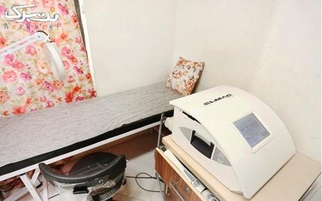 لیزر نواحی بدن در مطب دکتر جمالی