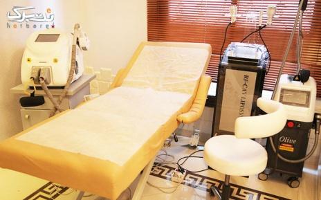 لیزر Elight +IPL نواحی بدن در مطب دکتر فولادی