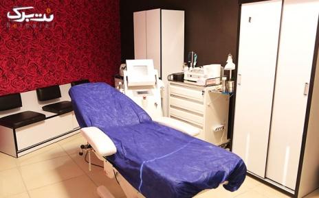 لیزر کل بدن در مطب دکتر صالحی