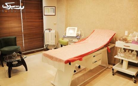 لیزر الکساندرایت ویژه فول بادی در مطب دکتر لامعی