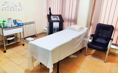 لیزر IPL نواحی بدن در مطب دکتر عسگری