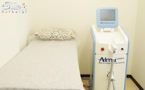 لیزر دایود آلما ناحیه زیربغل در مطب دکتر صابری
