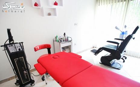 لیزر الکساندرایت ویژه زیر بغل در مطب دکتر سلطانی