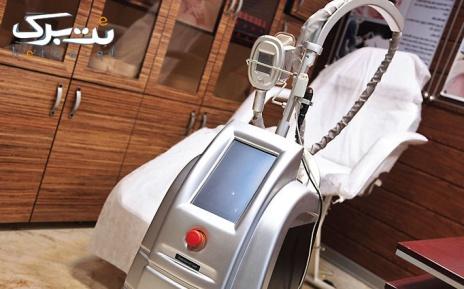 لیزر نواحی بدن در مطب دکتر میرئی