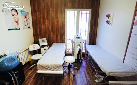الکساندرایت  ویژه زیر بغل در مطب دکتر ایزدی