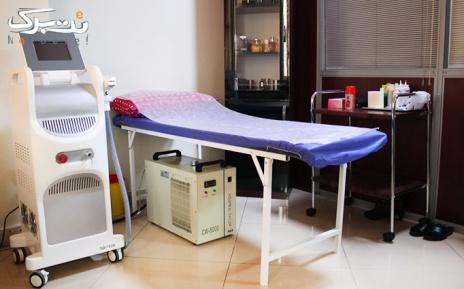 لیزر دایود ناحیه زیربغل در مطب دکتر تازیک