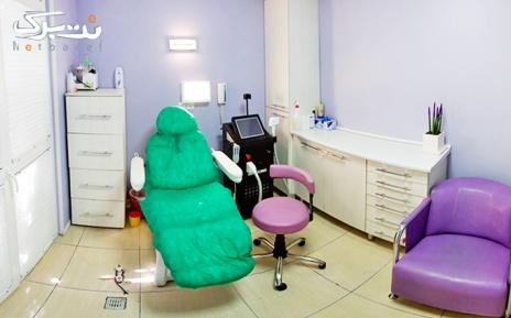 الکساندرایت نواحی بدن در مطب خانم دکتر محمد حسینی