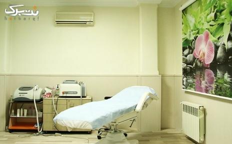 لیزر الکس ویژه زیر بغل در مطب دکتر تاج الدینی