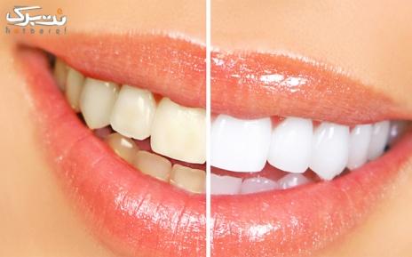 بیلیچینگ دندان توسط دکتر میرخواه