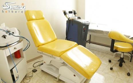 لیزر الکس ناحیه ای در مطب دکتر لاله پناه