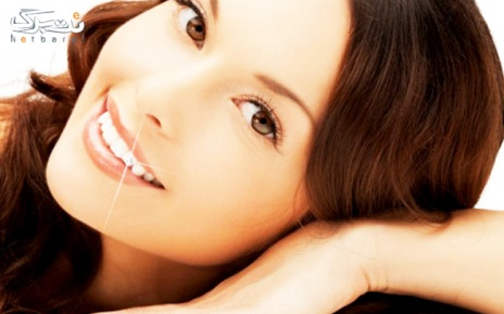 پکیج 3: کاشت نگین دندان توسط دکتر طالع