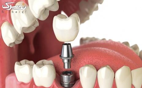 ایمپلنت دندان در مطب دکتر رحیمی کیان