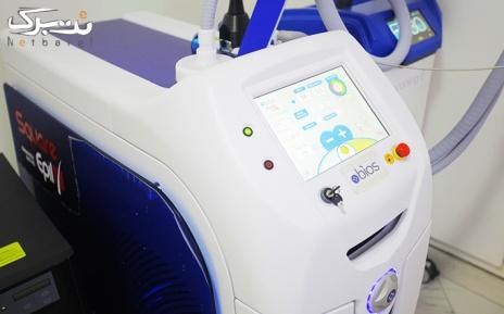 لیزر الکس ویژه کل بدن در مطب دکتر خوشرو