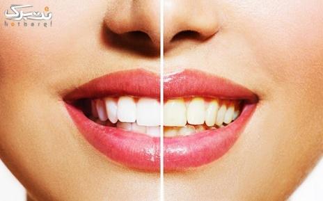 جرمگیری دندان و بروساژ دندان در مطب دکتر امامی نسب