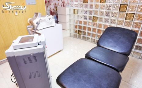 لیزر الکس ویژه زیر بغل در مطب دکتر رادین مهر