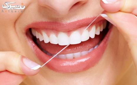 بلیچینگ دندان در مطب دکتر مددی نوعی
