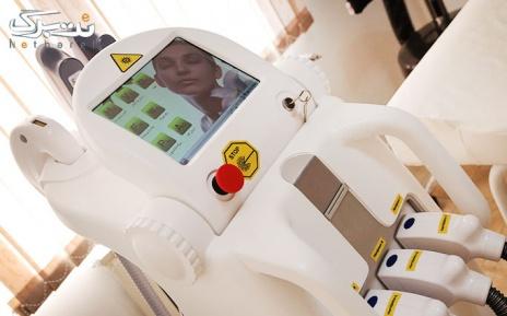 لیزر Elight -SHR زیر بغل در مطب دکتر منتصری