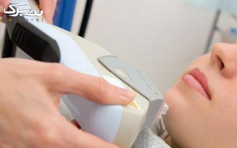 لیزر SHR ویژه زیر بغل در مطب دکتر حدودی