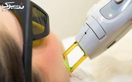 لیزر Elight -SHR ویژه نواحی در مطب دکتر آقا میری