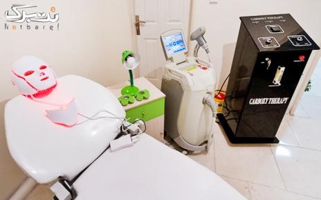 کربوکسی تراپی صورت در مطب دکتر محققی