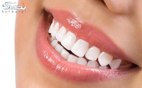 بلیچینگ دندان در مطب دکتر سریرا علی زاده طاری