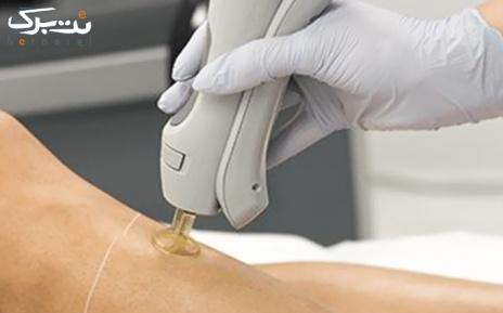 لیزر الکس ویژه نواحی بدن در مطب دکتر دریاباری