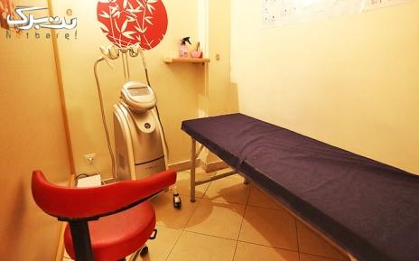لیزر ایلایت ویژه نواحی بدن در مطب دکتر غلامی