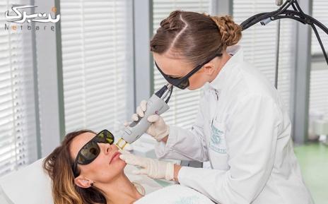 لیزر الکساندرایت نواحی بدن در مطب دکتر ملکیاری