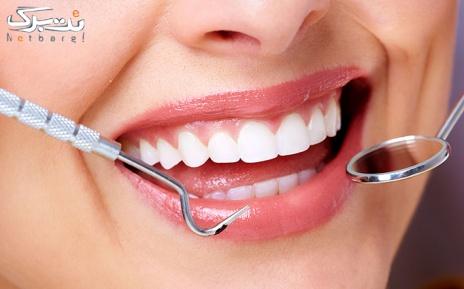 جرمگیری دندان و بروساژ دندان در مطب دکتر سمسارزاده