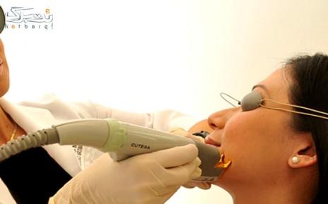 لیزر الکساندرایت زیربغل در مطب دکتر سلطانی نژاد