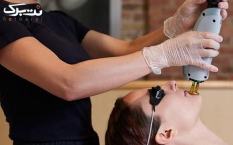 لیزر دایود ویژه زیر بغل در مطب دکتر خلجی