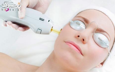 لیزر الکساندرایت کندلا زیر بغل در مطب دکتر رضائی