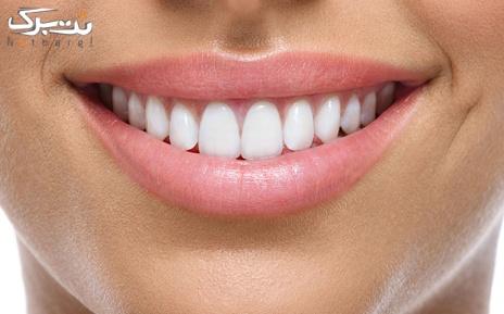 ترمیم دندان با کامپوزیت در مطب دکتر شکری
