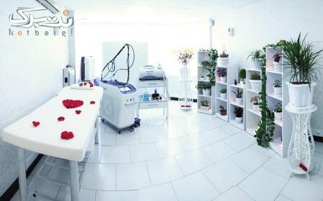 لیزر الکساندرایت  ویژه نواحی بدن در مطب دکتر سعادت