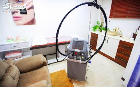 لیزر الکساندرایت زیر بغل در مطب دکتر منتظری فر