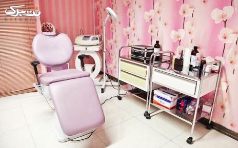 لیزر الکساندرایت زیر بغل در مطب دکتر پور حسین
