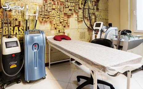 لیزر الکساندرایت زیر بغل در مطب دکتر حسنی