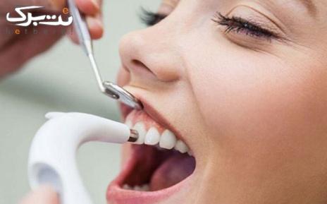 جرم گیری و بروساژ دندان توسط دکتر شکرچی