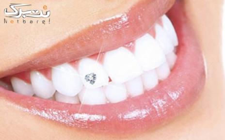 کاشت نگین بر روی دندان توسط دکتر شکرچی
